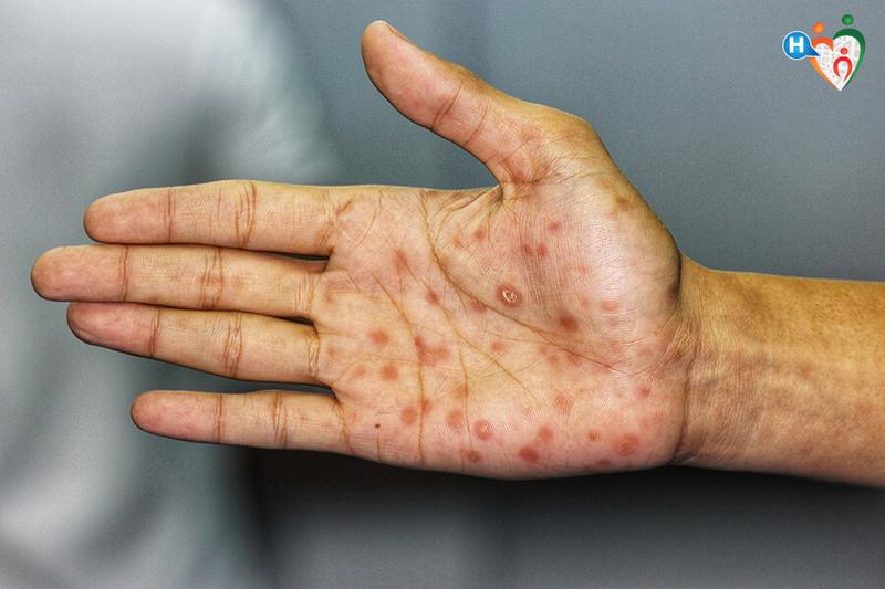 gli effetti dell antibiotico sulla prostatite dopo quanto tempo 1