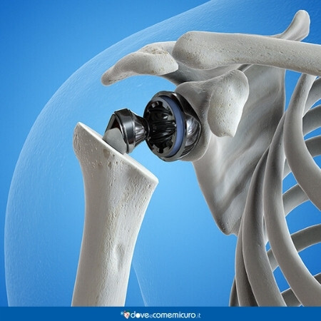 Immagine che rappresenta una protesi alla spalla