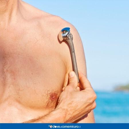 Immagine che rappresenta una persona con una protesi alla spalla