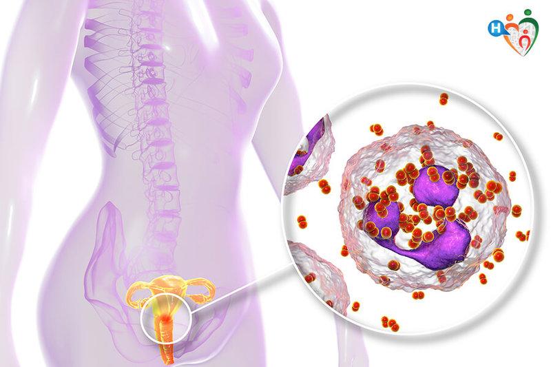 principale causa di uretrite chlamydia vaccine