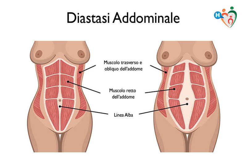 Risultati immagini per diastasi addominale