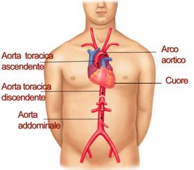 bruciore al sito di angiogramma nella zona inguinale