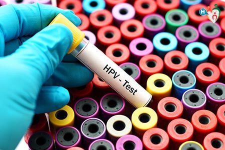 HPV Test - Vaccino