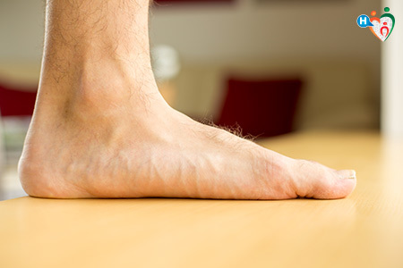 Immagine con piede piatto, una delle cause della fascite plantare