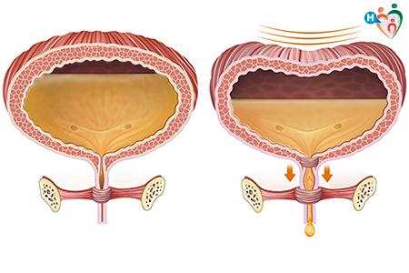 lesame del sangue mostra il cancro alla prostata