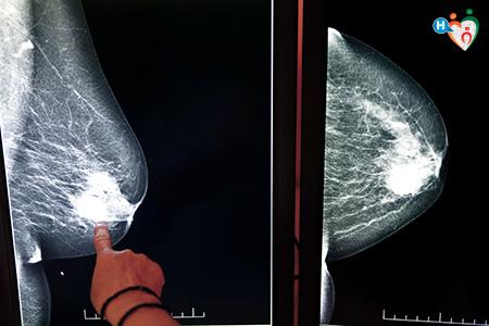 dolore alla prostata ma esami okaloosa