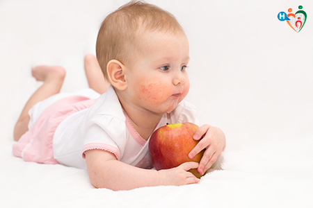 Immagine che ritrae un bambino sdraiato a pancia in giù con le guance rosse per via della dermatite, e stringe in mano una mela
