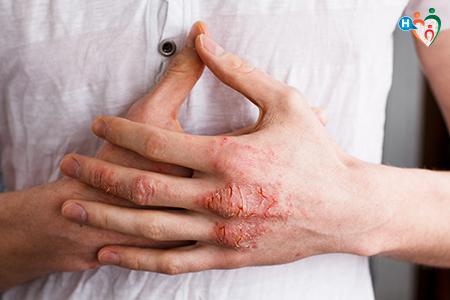immagine di una persona che si porta le mani la petto congiunte, tutte rovinate dalla dermateite