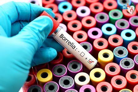 Immagine provetta virus Borrelia