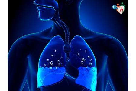immagine che mostra edema polmonare: situazione in cui i polmoni sono pieni di acqua