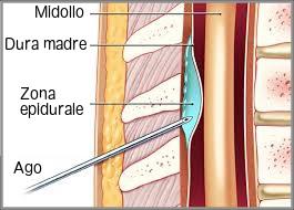 colonna vertebrale epidurale