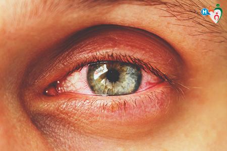 foto che mostra un occhio con la congiuntivite, con tutti i capillari rossi infiammati
