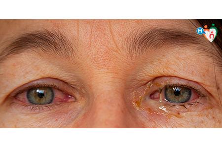 foto degli occhi di una persona con la congiuntivite, dove si vedono le secrezioni acquose miste a pus