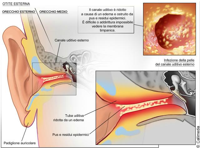 Dolori gravi in anestetici di vita