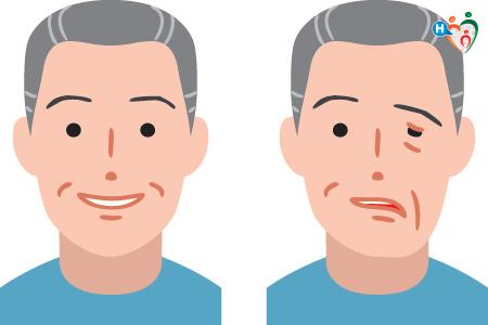 immagine che mostra i sintomi dell'ischemia cerebrale su un signore, dove la sua faccia sembra cadere