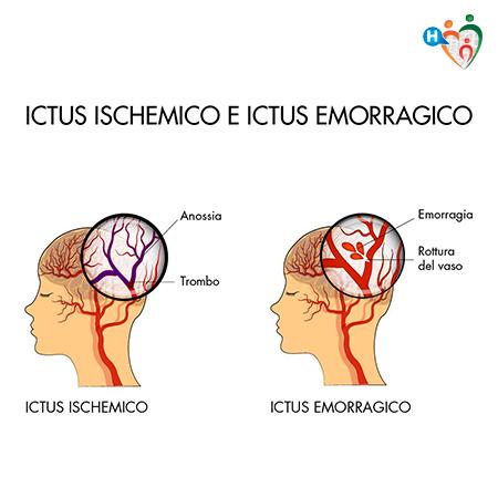 immagine che mostra le differenze tra l'ictus ischemico e ictus emorragico