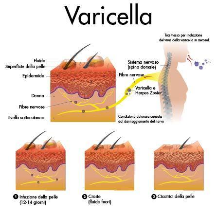 immagine che mostra la pelle quando è presente la varicella