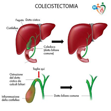 dieta di riduzione del fegato per la rimozione della cistifellea