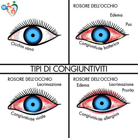 Immagine che mostra la differenza tra l'occhio sano rispetto a quello con la congiuntivite