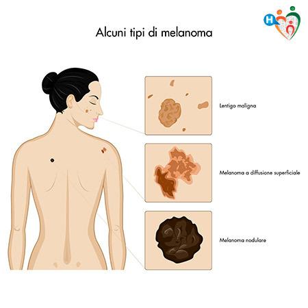 immagine che mostra alcune tipologie di melanoma
