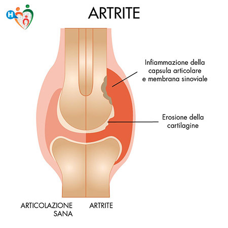 Artrite e artrosi: le differenze tra sintomi cause e terapie