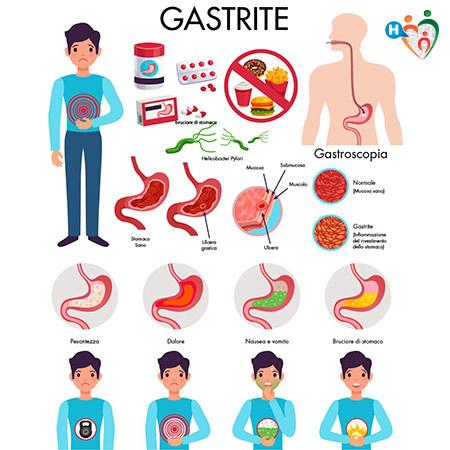 Immagine che mostra i sintomi della gastrite