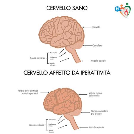 Immagine che mostra la differenza tra un cervello sano e uno affetto da adhd