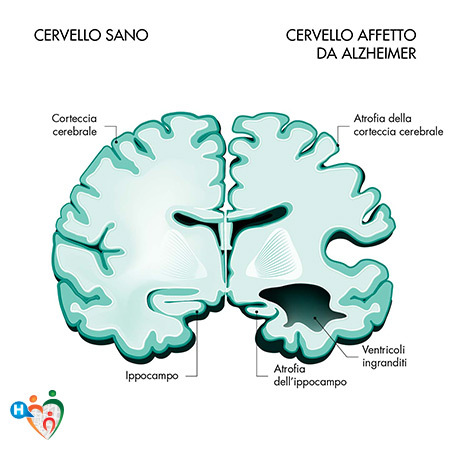 Immagine che mostra la differenza tra un cervello sano e uno affetto da alzheimer