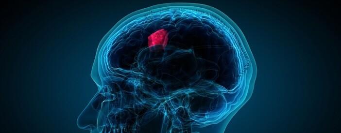 Francesca Berrini di AITC ONLUS, la testimonianza sui tumori cerebrali
