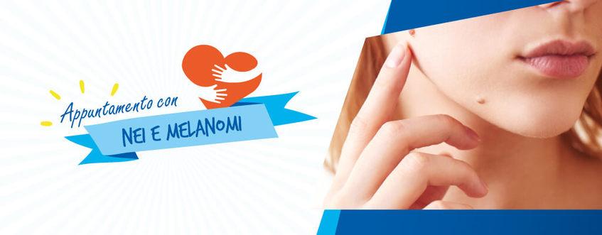 Nei e melanomi: breve guida su come riconoscerli