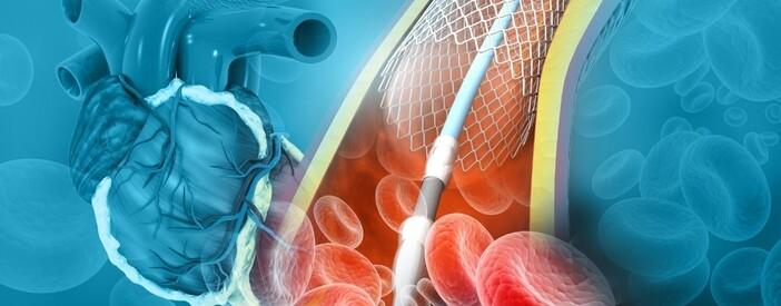 Angioplastica coronarica: intervista al Prof. Bartorelli