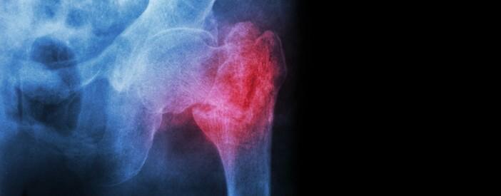 Frattura del collo del femore: intervista al Prof.Traina