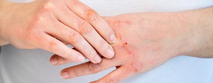 Dermatite atopica: cos'è? Cause e cure