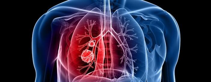 Il Tumore al Polmone spiegato dal Dott. Ugo Pastorino