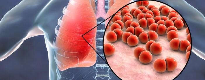 Polmonite: sintomi, cause, diagnosi e trattamento