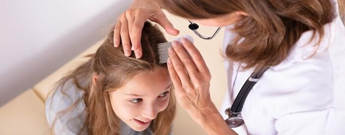 Pidocchi e lendini: capelli, come riconoscerli e trattarli