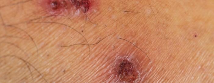 Impetigine: l'infezione che colpisce la pelle in estate