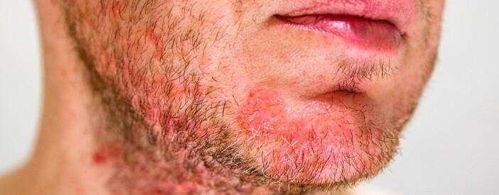 Dermatite seborroica: diffusione, rimedi, cause e cura