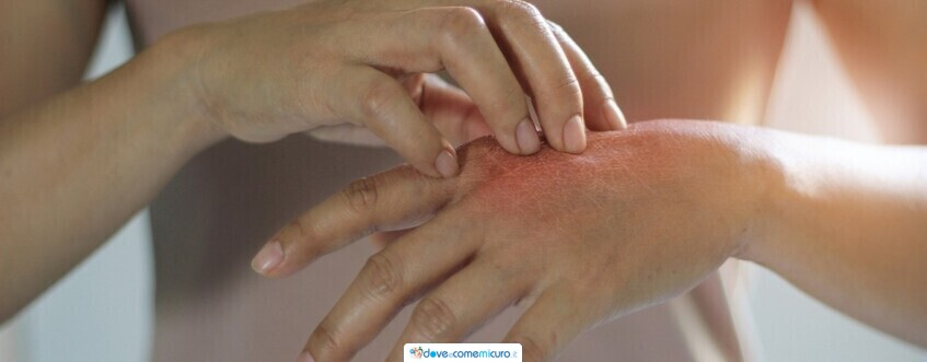 Psoriasi: sintomi, cure, cause e trattamento
