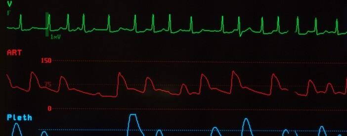 Fibrillazione atriale: cos'è? Sintomi, Cause e Terapia