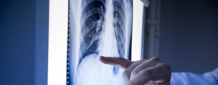 Tumori dell'osso e dei tessuti muscolari: le innovazioni della chirurgia