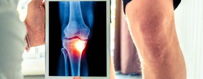 Articolazione del ginocchio, caviglia e piede: interventi e rigenerazione
