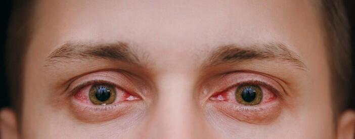 Congiuntivite: contagio, tipologie, cause e rimedi