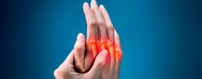 Artrite reumatoide: sintomi, terapia e diagnosi