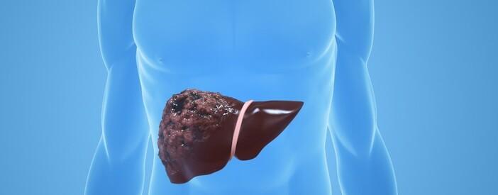 Tumore al fegato: sintomi, cure e prevenzione