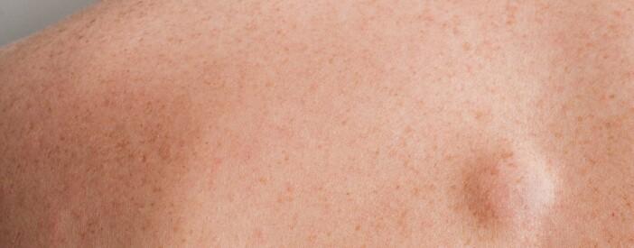 Lipoma: cause, sintomi e trattamento
