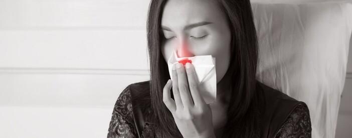 Epistassi: cosa fare e non fare quando sanguina il naso?