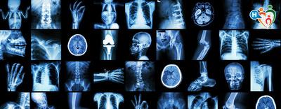 Osteoporosi, la resa dopo una frattura