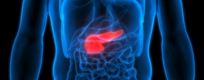 Insulinoma, un tumore raro al pancreas: diagnosi e sintomi