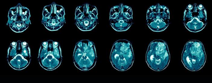 Glioblastoma multiforme o astrocitoma: sintomi, sopravvivenza e guarigione